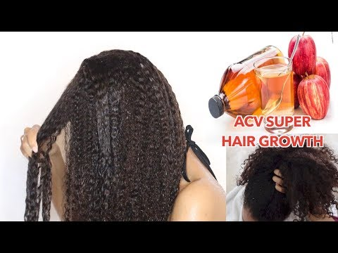 Rapid HAIR GROWTH Apple Cider Vinegar treatment! Natural Hair