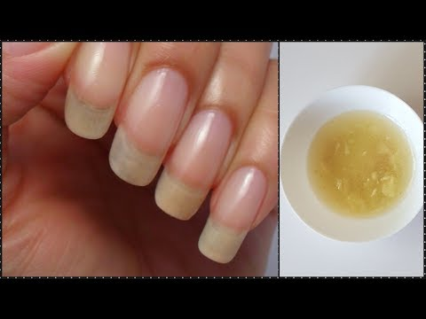 Grow Nails Fast and Strong in Just 7 Days at home with Natural Remedy