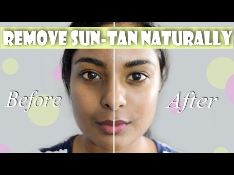 How To Remove Suntan & Hyperpigmentation Naturally For Even Skin Tone & Glowing Complexion