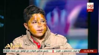 #x202b;الطفل المختطف لبيع اعضاءه  يكشف كيف تم دفنه فى القبر وكيف خرج من تحت التراب#x202c;lrm;