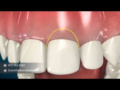 What is Crown Lengthening