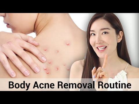 Body Acne Treatment | Summer Essentials | Wishtrend
