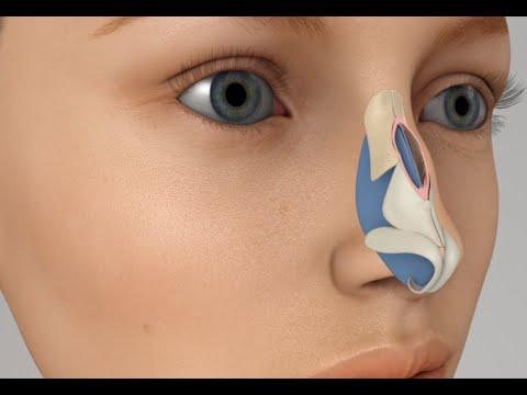 Nasal Hump Removal Nosejob