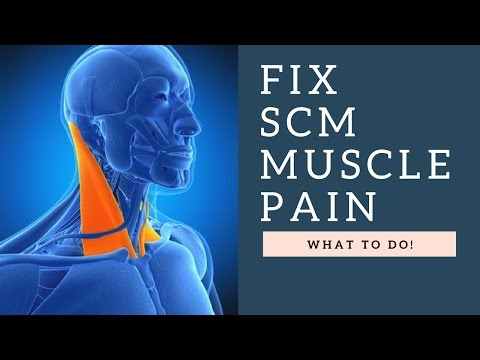 FIX Sternocleidomastoid (SCM) Muscle Neck Pain, Headaches & Jaw Pain With This Stretch!