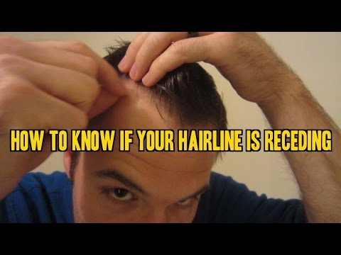 How to Know If Your Hairline is Receding