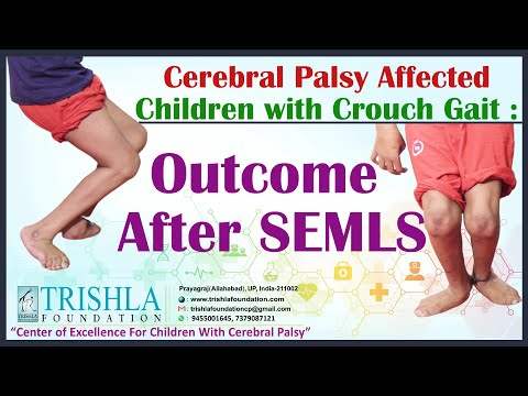 Cerebral Palsy affected children with Crouch Gait : Outcome after SEMLS