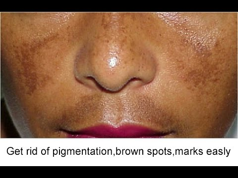 How to get rid of Face Pigmentation with easy Home Remedies/ Super Beauty j