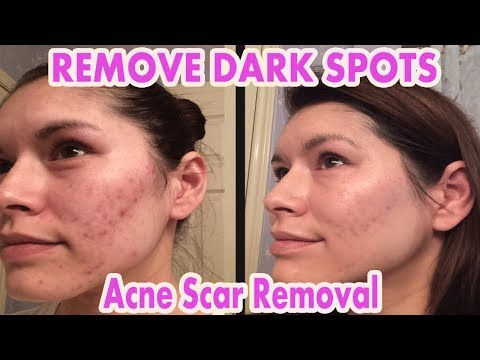 Remove Acne scar Marks | Home Remedies For Acne Scars Overnight