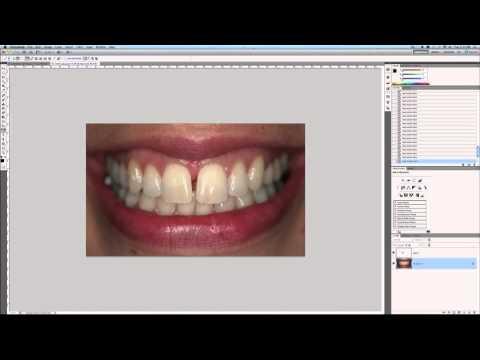 Photoshop Tutorial - Remove Teeth Gap
