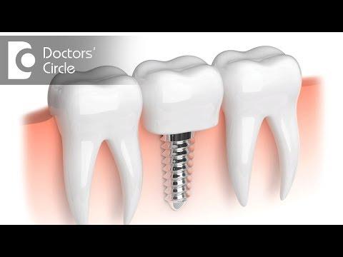 How to maintain oral hygiene with Dental Implants? - Dr. Shambhu H Shivanna