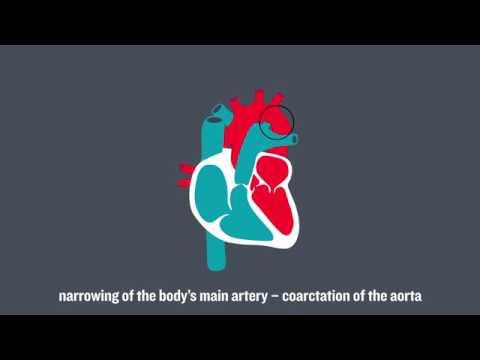 Congenital Heart Conditions