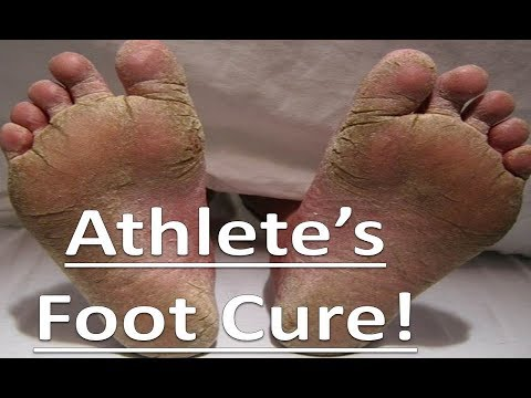 Tea Tree Oil - All Natural Athlete's Foot Home Remedy