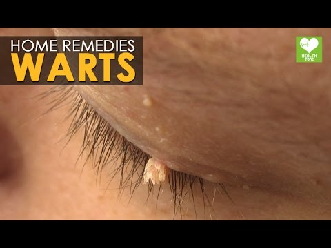 Warts Removal - Home Remedies | Health Tips
