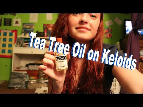 Keloid Remedies - Tea Tree Oil