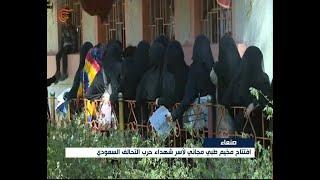 افتتاح مخيم طبي مجاني لأسر شهداء حرب التحالف السعودي