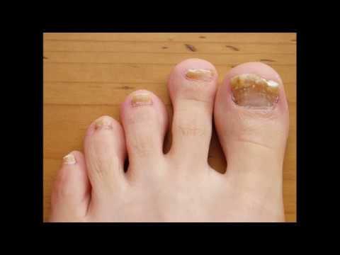 toenail fungus remedy listerine: toenail fungus vinegar listerine