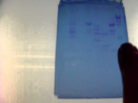 GEL ELECTROPHORESIS FOR MICROBIOLOGY LAB