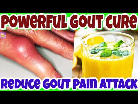 Stop GOUT ATTACK & GOUT PAIN Naturally, This NATURAL CURES for GOUT Will REMOVE GOUT PAIN Fast!