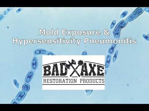 Mold Exposure and Hypersensitivity Pneumonitis by Bad Axe Restoration Products