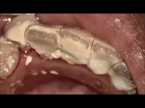 More! Plaque calcite removal extraction (tartar)