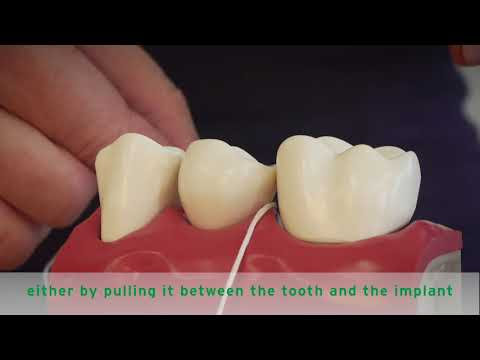 HOW TO FLOSS IMPLANTS