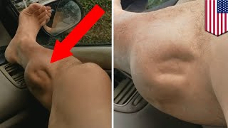 Muscle cramps explained: What's causing this guy's leg to spasm horrifically? - TomoNews