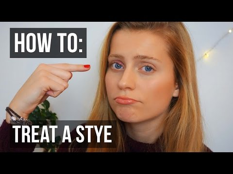 How to Treat a Stye in Your Eye QUICKLY | Ellesse