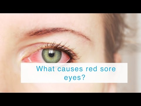 What causes red sore eyes?