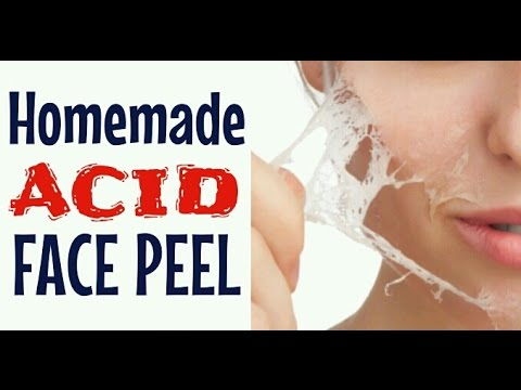 HOW TO MAKE AN ACID FACE PEEL | Does It Really Work? | Cheap Tip #177
