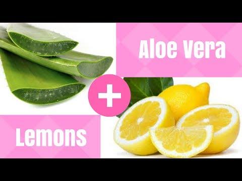 Psoriasis Treatment at Home [DIY With Aloe Vera & Lemons]