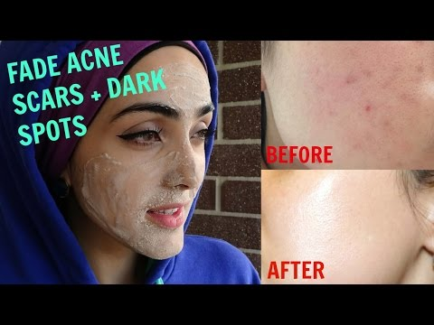 How To Get Rid of Acne Scars & Hyperpigmentation NATURALLY AT HOME| Tx for ALL Skin Types! ~ Immy