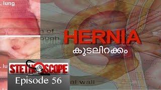 Stethoscope - Hernia | കുടലിറക്കം (Episode 56)