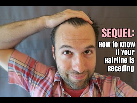 Sequel: How to Know if Your Hairline is Receding