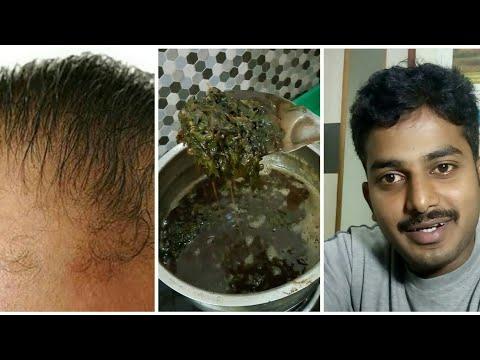 💂👸Hair Growth (Tips Remedies) Tamil, How to Grow Hair Fast, Hair Fall Control Tips, mudi valara oi