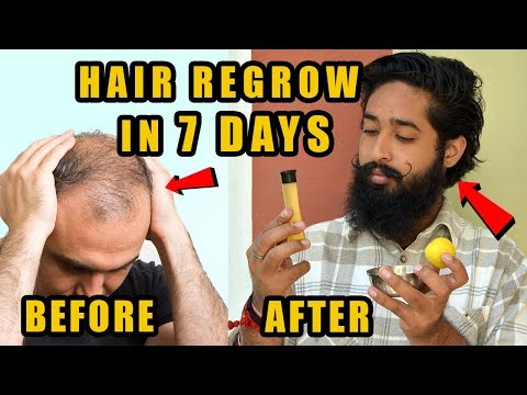2018 Hair Regrow in 7 days |  Natural Home Remedies For Fast Hair Growth | Natural Remedy