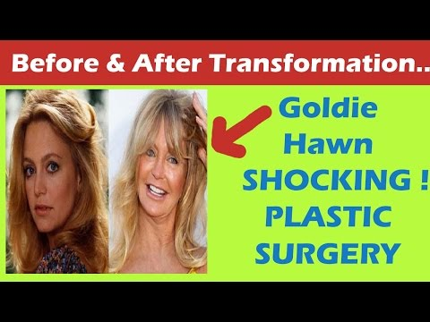 Goldie Hawn Plastic Surgery Before And After Full Hd