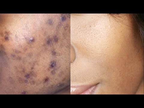 HOW TO GET RID OF DARK SPOTS,  ACNE SCARS, & HYPERPIGMENTATION | NaturallyNellzy