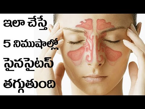 Cure your sinuses in 5 Minutes with at home remedies | Telugu Mirchi