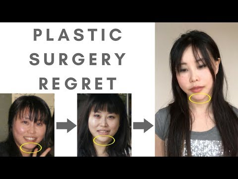 Plastic surgery regret | Why my chin is distorted... Why I love teaching face yoga exercises