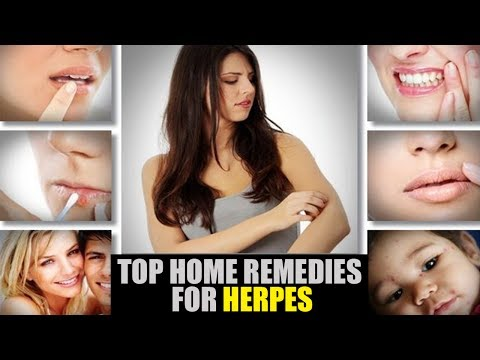Top Home Remedies For Herpes
