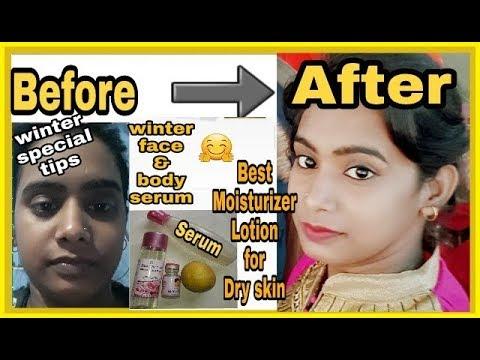 Best Moisturizer Lotion for Dry skin, Lips, Face,Hand,Body & Feet / Best Body lotion