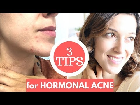 GET RID OF YOUR HORMONAL ACNE!
