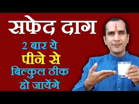 White Spots Health Tips in Hindi - सफ़ेद दाग के घरेलू नुस्खे - Safed Daag ka ilaj by Sachin Goyal
