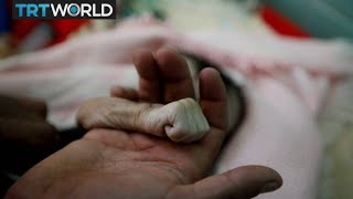 The War In Yemen: Un Says 12 To 14m People Are Starving