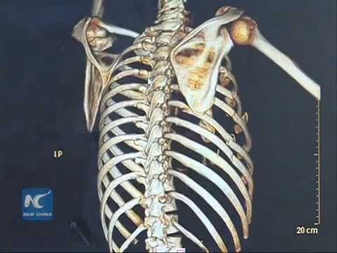 3D printers help to fix broken ribs in Chinese hospital