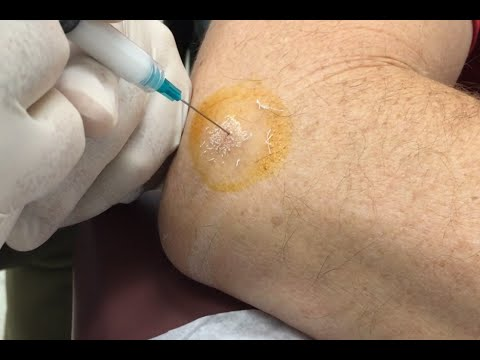 Tennis Elbow Cortisone Injection Epicondylitis Treatment For Marco