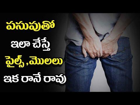 How To Cure Piles Naturally - Mana Arogyam Telugu Health Tips