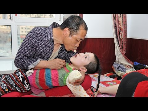 Parents Feed Cerebral Palsy Daughter Mouth To Mouth