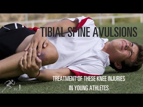 Tibial spine avulsion: Treatment option for young athletes