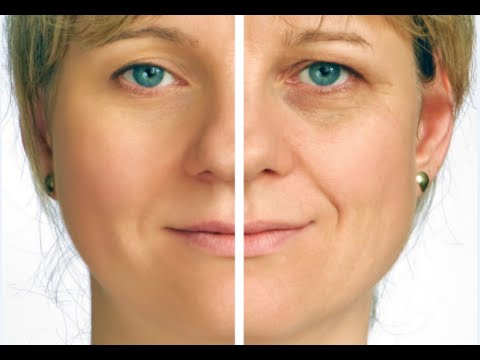 How to Get Rid of Deep Eye Wrinkles - Under Eye Wrinkles Treatment